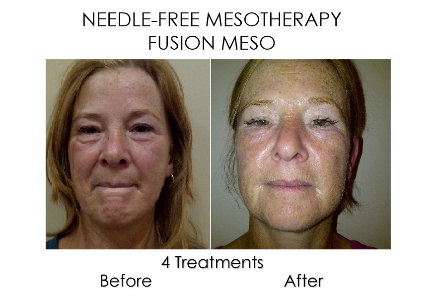 fusion-no-needle-mesotherapy-before-after